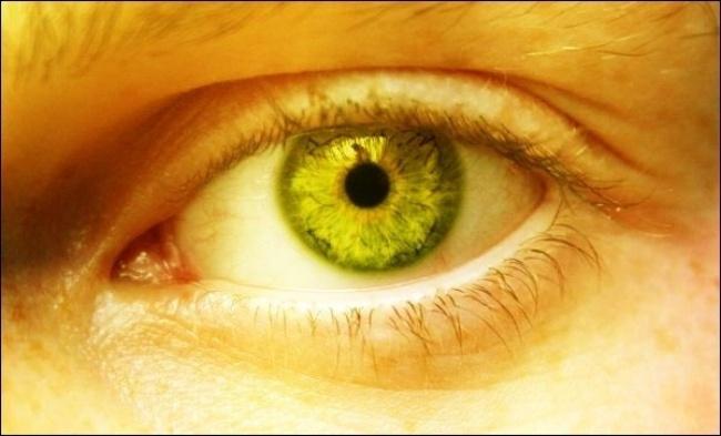 persona con color amarilento en tu piel