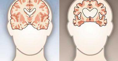 diferencia entre un cerebro sano y un cerebro deteriorado