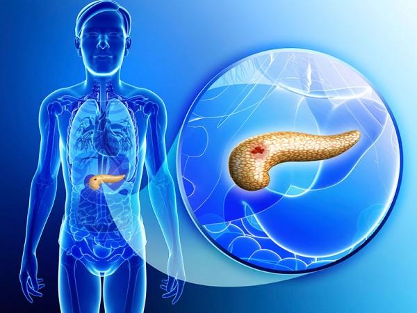 La diabetes tipo 2 puede ser causante del sobrepeso