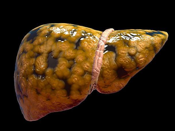 problemas en el hígado ocasionan sobrepeso