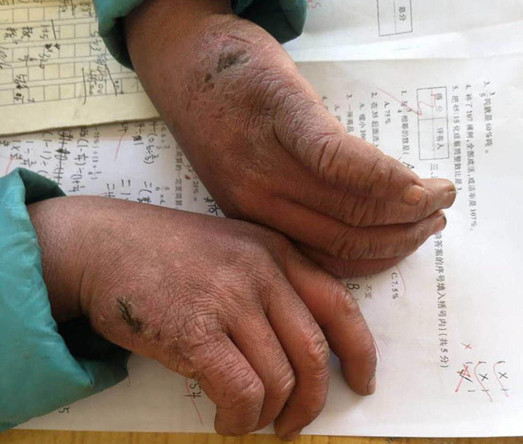 manos lastimadas de niño que asiste a estudiar