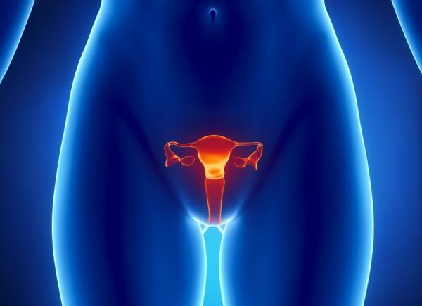 Una afección en los ovarios puede desencadenar problemas de sobrepeso