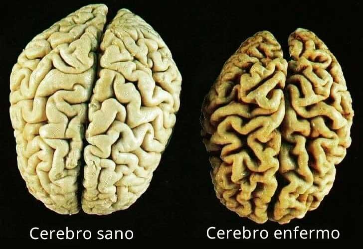 vitaminas que te ayudarán a prevenir el deterioro del cerebro