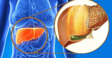 cambios en la piel problemas en el hígado