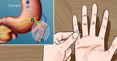 Prueba casera para detectar prediabetes