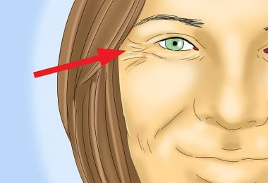 Los diferentes tipos de arrugas en la piel de las mujeres