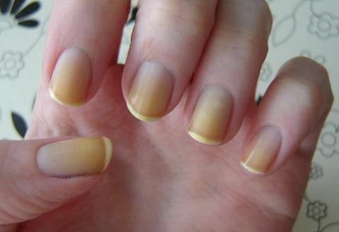 cambios en las uñas decoloradas