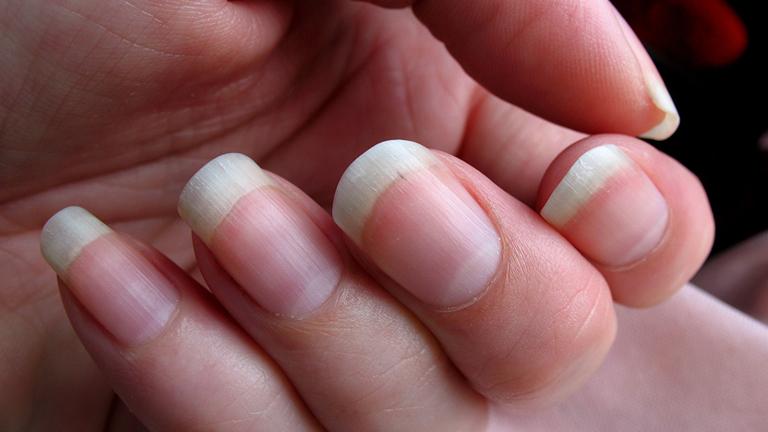 cambios en las uñas