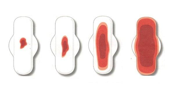 detener la menstruación