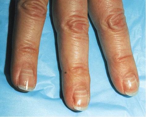 líneas blancas cambios en las uñas