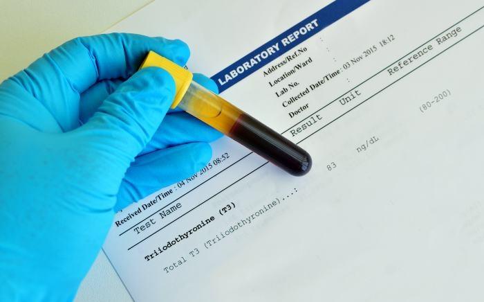 pruebas de tiroiditis de hashimoto