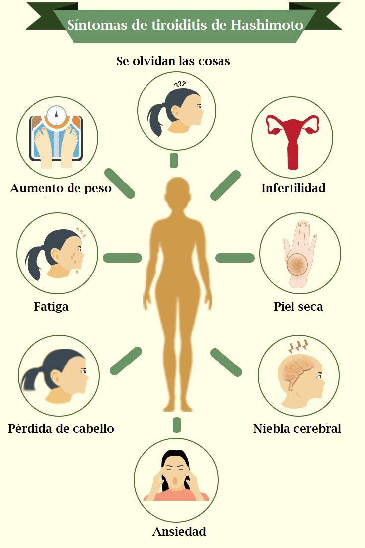 tiroiditis de hashimoto síntomas