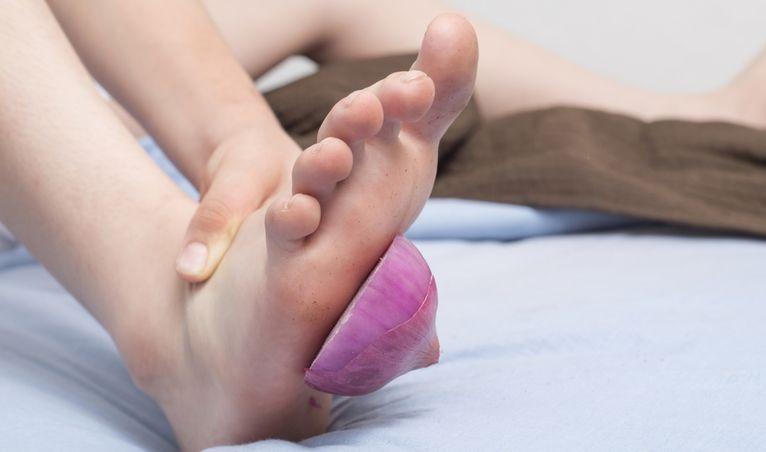 cebollas en los pies para curar infecciones
