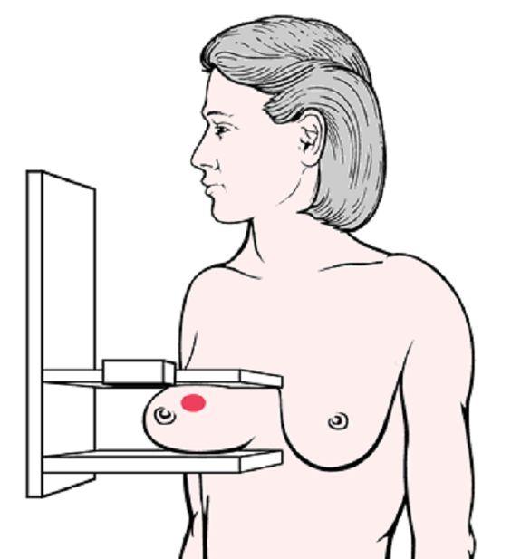 las mamografías