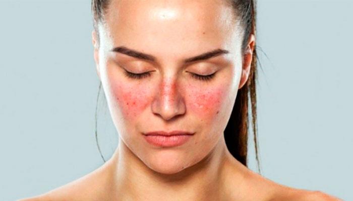 enfermedad de el lupus