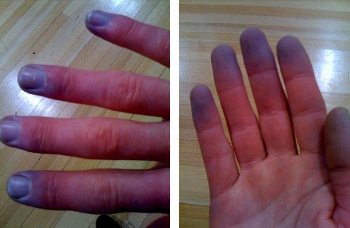 síntomas de lupus