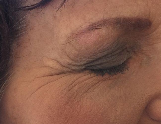 mujer con arrugas en la cara y patas de gallo