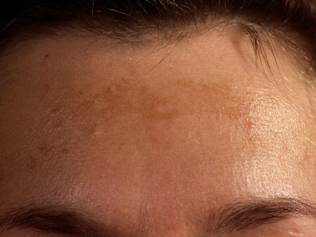 mujer que presenta manchas en el rostro por usar el teléfono móvil