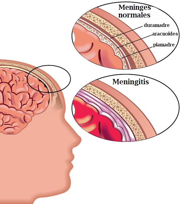 meningitis cerebro