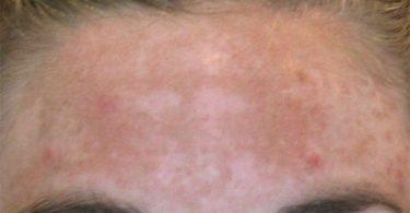 mujer con el rostro manchado