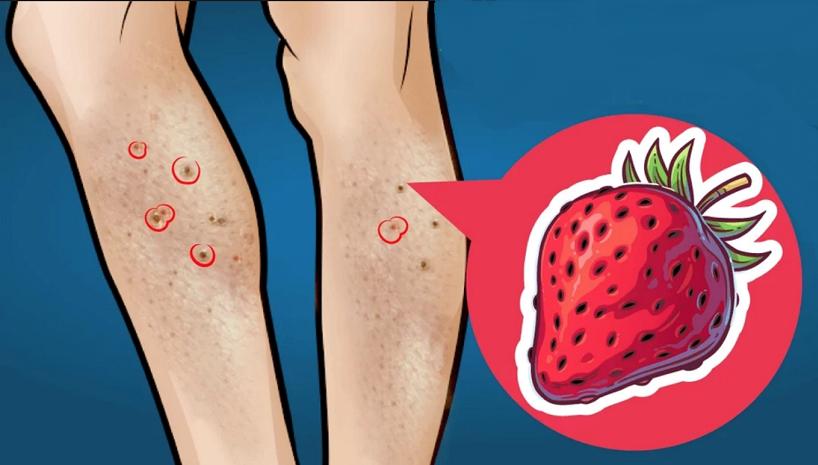 como quitar los puntitos rojos despues de depilarse