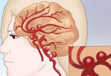 riesgo de padecer aneurisma por el endurecimiento de las arterias