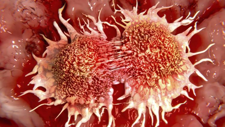 cáncer por inflamación crónica