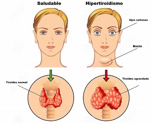 hormonas tiroideas enfermedades