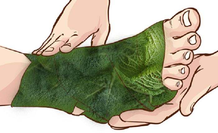 vendaje con hojas de repollo