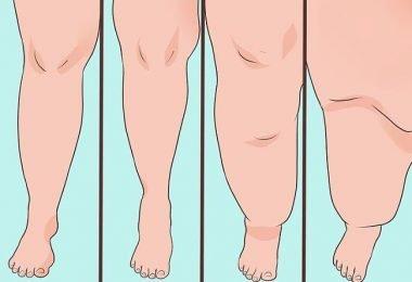 las diferentes etapas de la inflamación en los miembros inferiores de la mujer