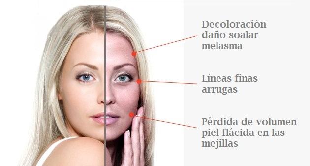 piel del rostro a los 30 anos
