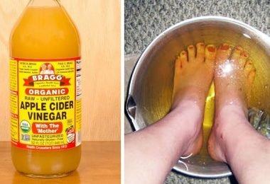 beneficios de sumergir los pies en vinagre de manzana