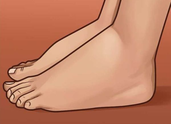 los pies hinchados pueden ser señales de mal funcionamiento cardíaco