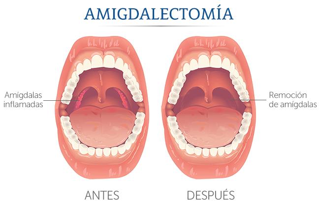 quitar las amígdalas amigdalectomía