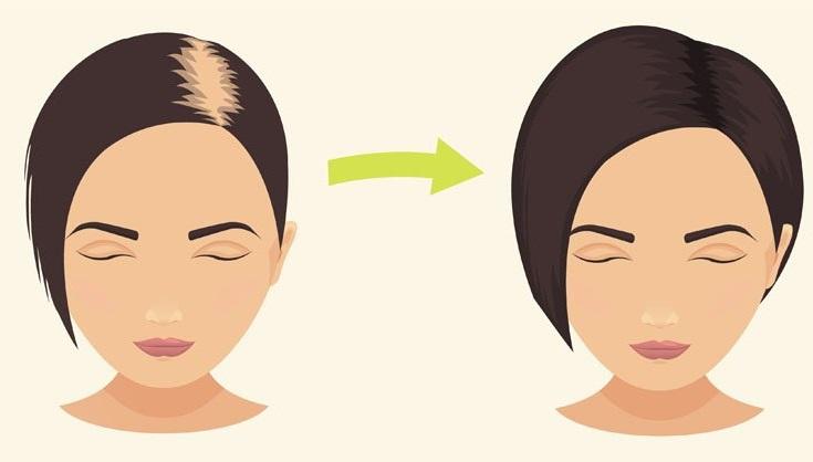 crecer nuevamente el pelo con tónico capilar