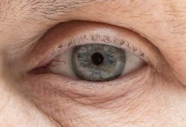 Una persona adulta que presenta un derrame ocular