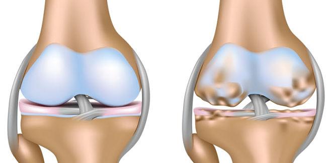 gráfico del desgaste del cartílago producido por la osteoartritis