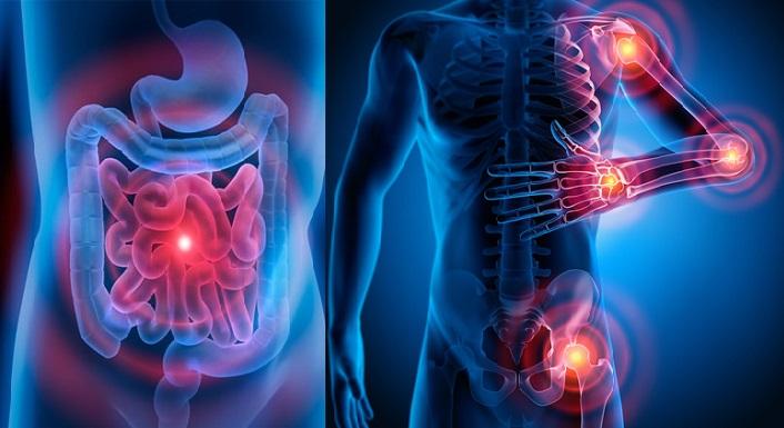 problema digestivo especifico relacionado a la fibromialgia