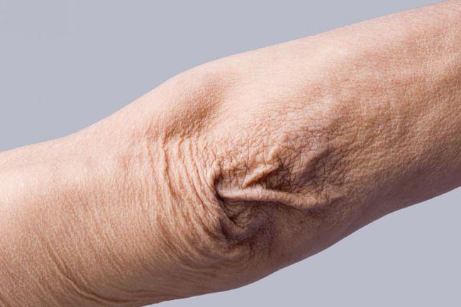 El brazo de una mujer que tiene arrugas y necesitaría usar colágeno hidrolizado para hacer su piel más elástica