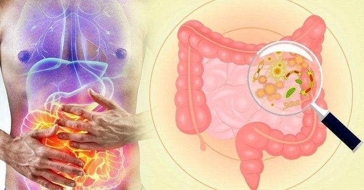 persona con inflamación abdominal por padecer intestino permeable