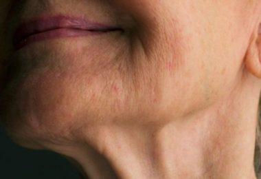 una mujer con arrugas que usa colágeno hidrolizado
