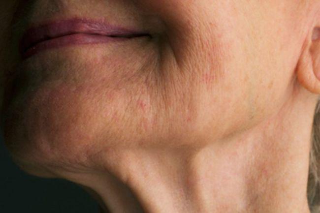 Mujer que tiene la piel con arrugas y ha comenzado a usar el colágeno hidrolizado