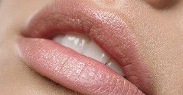 labios que antes tenían manchas y ahora se ven perfectos