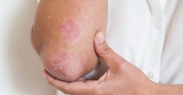 Manifestaciones en la piel de la artritis psoriásica