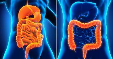 Conoce las causas y síntomas de la colitis ulcerosa