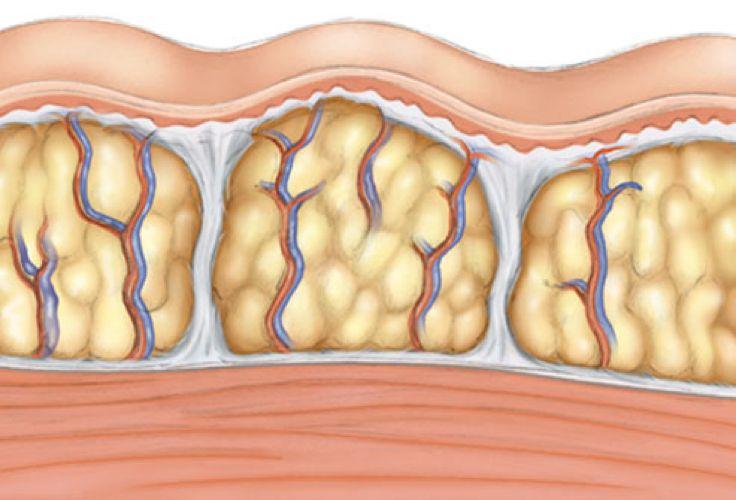 grasa localizada en el cuerpo