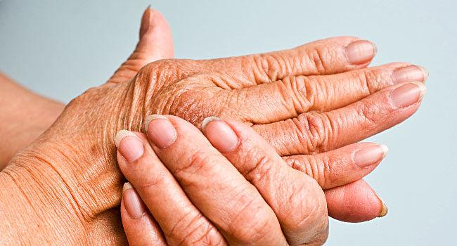 La evolución de los síntomas de la artritis psoríasica
