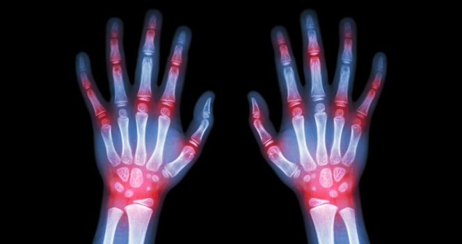 las causas de la artritis reumatoide