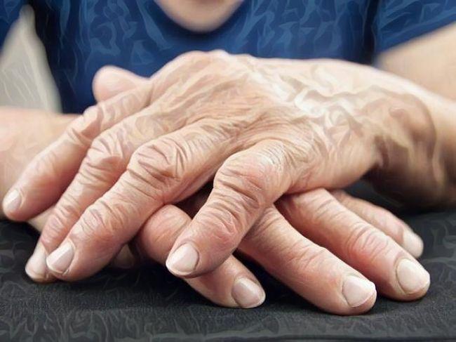 Mujer que padece artritis reumatoide y tiene los dedos de la mano deformados