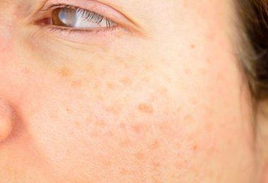 Tipos diferentes de manchas en la piel
